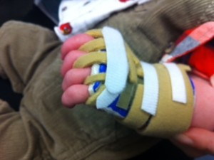 Childrens Splint