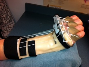 Splinting and Orthotics